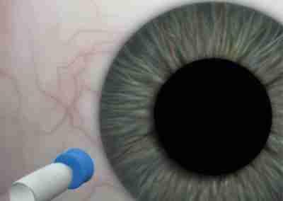 Calibre 25. Retina
