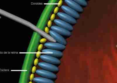 Terapia génica utilizando un vector de adenovirus
