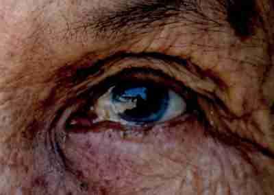 Banner Semana Mundial de Glaucoma 2020